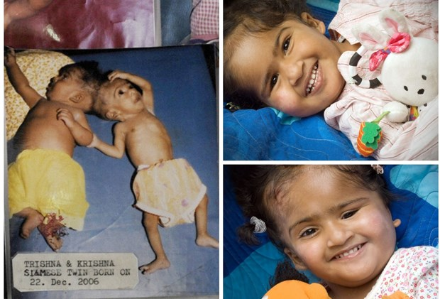 Conjoined Twins Trishna And Krishna Are Nearly  Just Look At Them Now